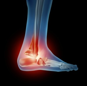 ankle-pain-ca