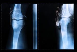 arthroscopic-surgery-ca