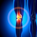 knee-pain-ca